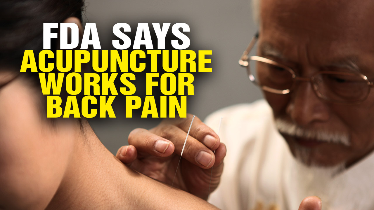 Image: FDA Wants Doctors to Recommend Acupuncture and Chiropractic Care for Back Pain (Video)