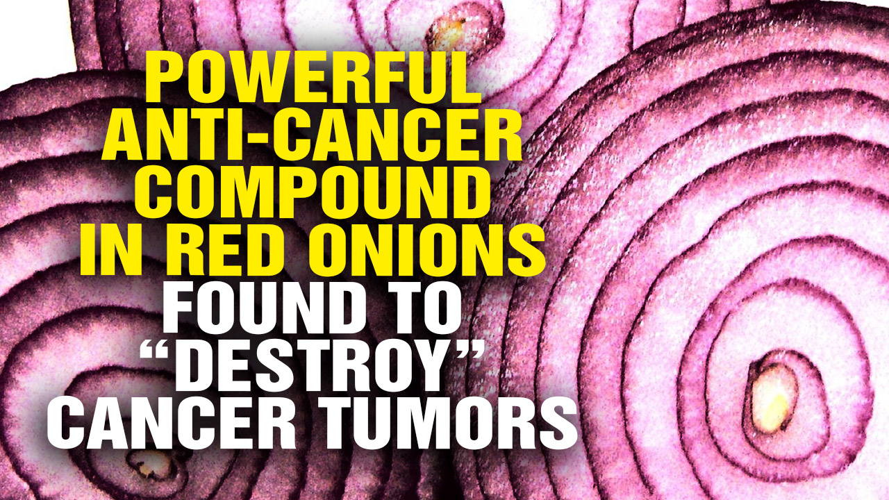 "Image: Powerful Anti-Cancer Compound in Red Onions Found To ""Destroy"" Cancer Tumors (Video)"